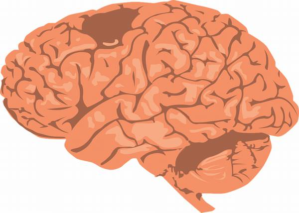 piada do transplante de cérebro