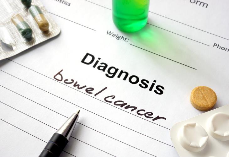 Preocupado com câncer no intestino?