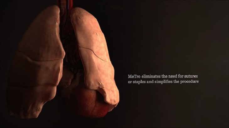 material MeTro ajuda a cicatrizar feridas