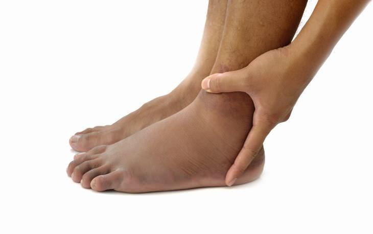 4 Métodos naturais para tratar pés inchados e pernas