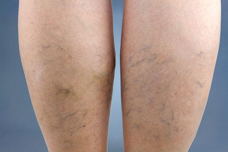 10 coisas que sua pele está dizendo sobre sua saúde