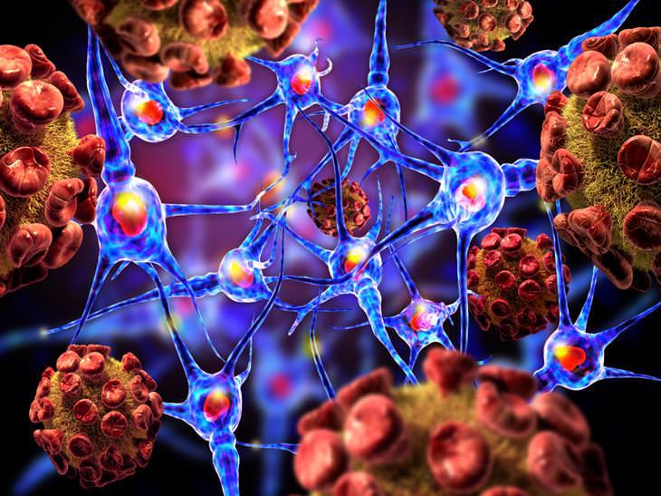 esclerose múltipla sintomas causa tratamento