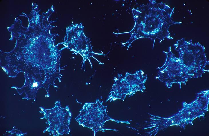 melão-de-são-caetano mata até 98% de células cancerígenas