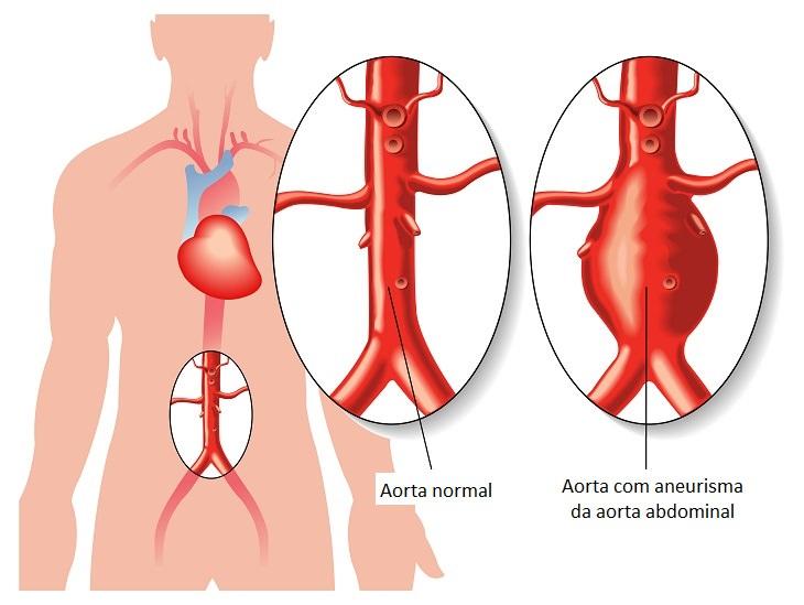 Alerta de saúde: Saiba tudo sobre aneurisma da aorta