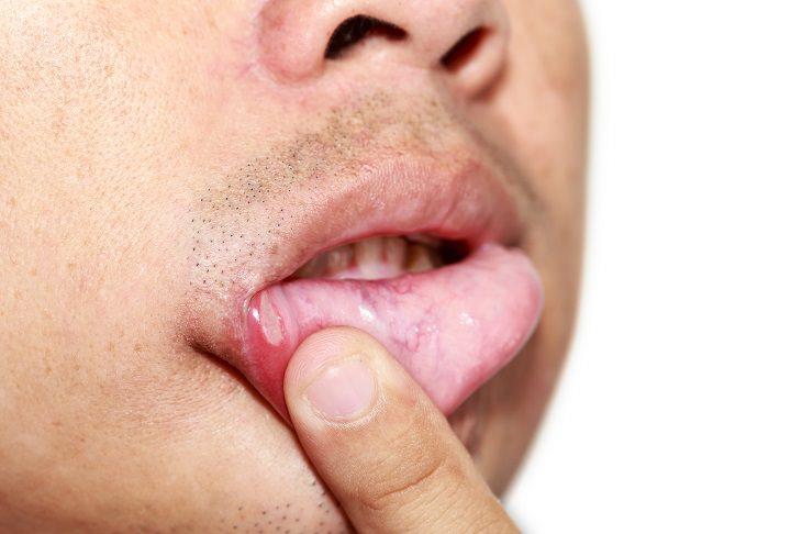 Saúde: 8 Sinais de que você precisa de mais vitaminas