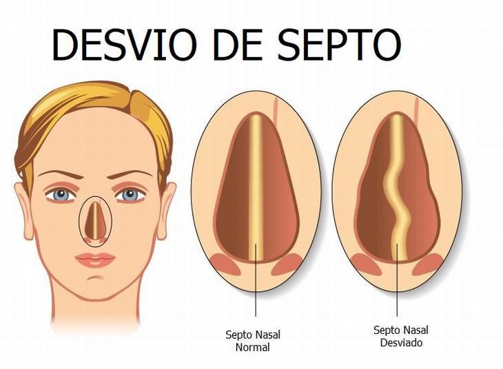 Sinusite recorrente