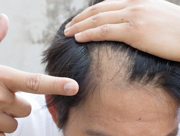 como tratar a alopecia