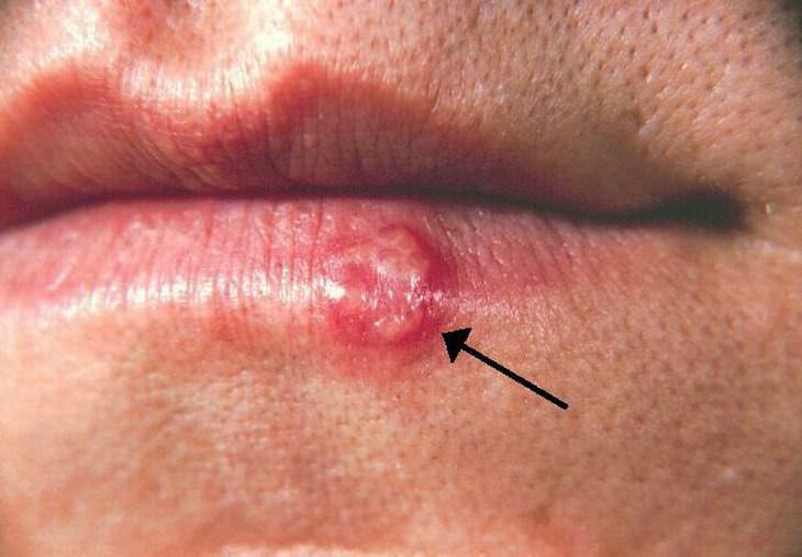 dicas para espinhas e problemas de pele