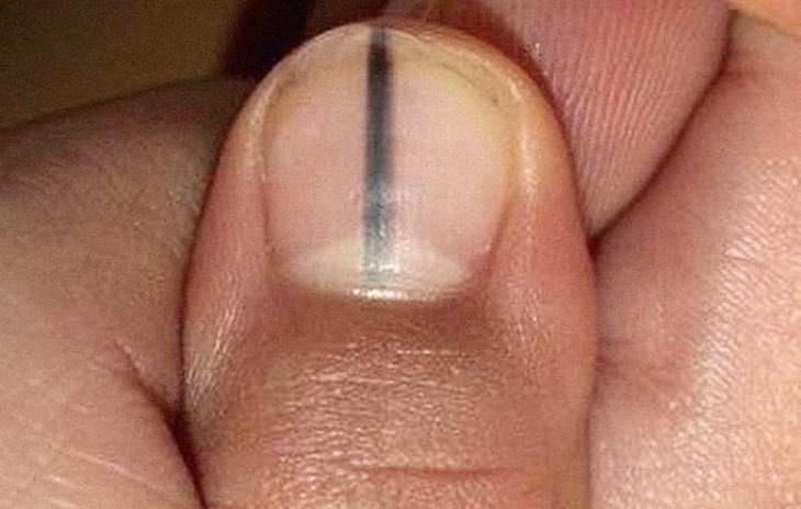 marca na unha indica melanoma