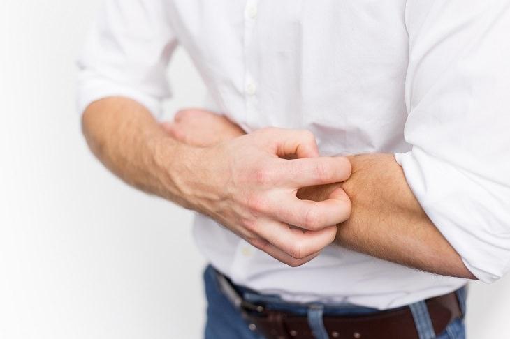 remédio caseiro para eczema