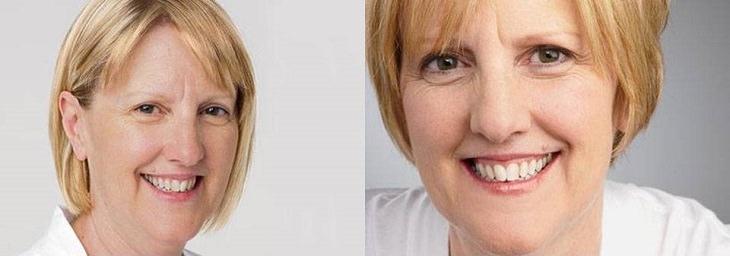 4 cortes de cabelo que rejuvenescem