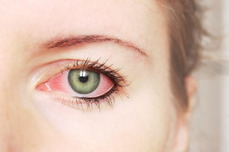 O que seus olhos dizem sobre sua saúde?
