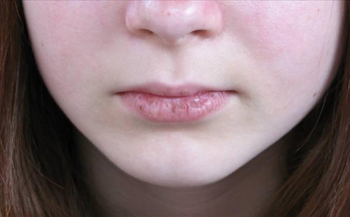 lábios secos rachados