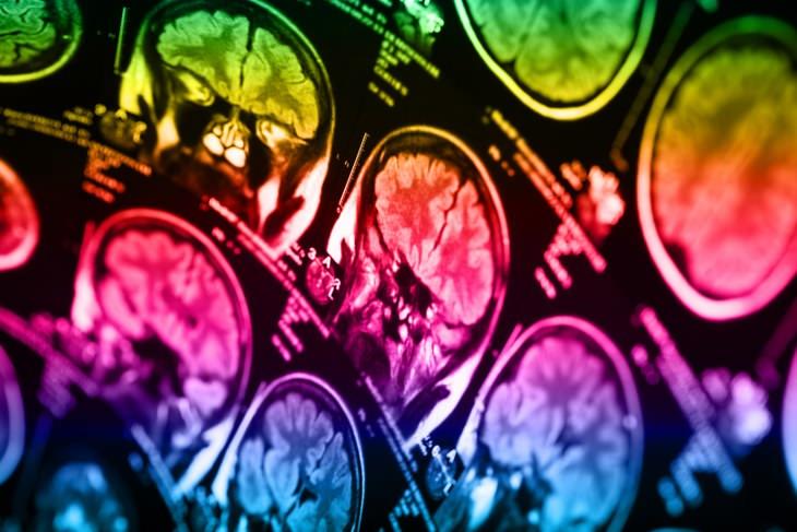 sintomas de câncer no cérebro
