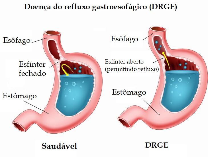 refluxo ácido