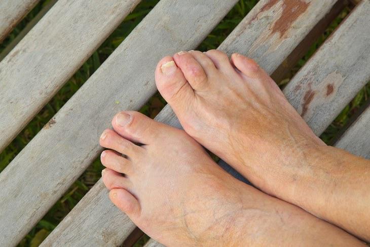 tornozelos e pés