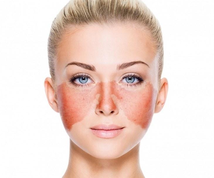Saúde da pele: Veja 10 possíveis causas de manchas no rosto