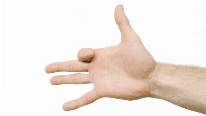 dores na mão