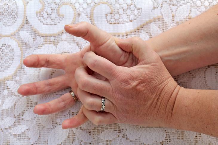 problemas de saúde revelados pelas mãos