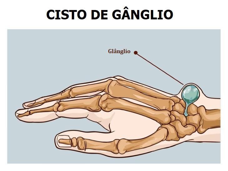 mão esclerosada