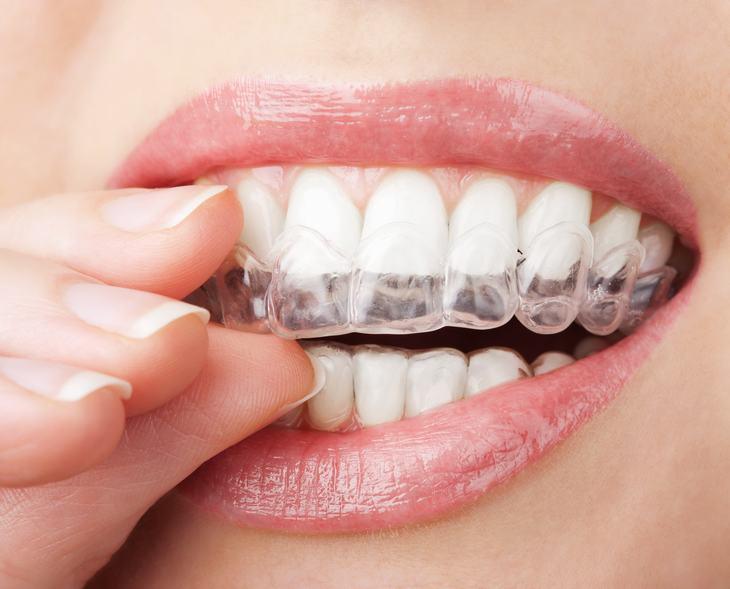 hábitos prejudiciais aos dentes