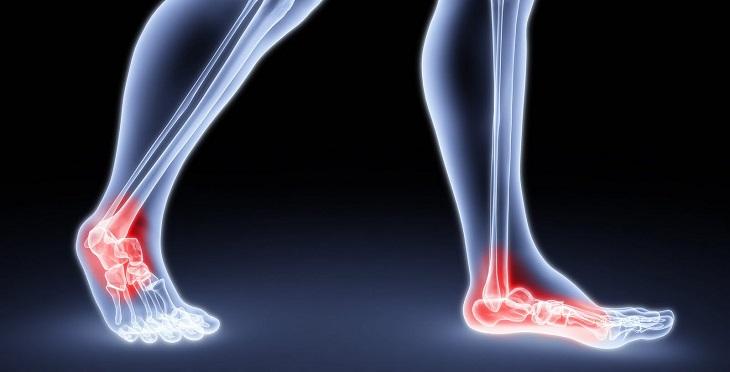 remédios naturais para dor no tornozelo