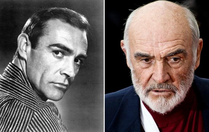 antes e depois de celebridades