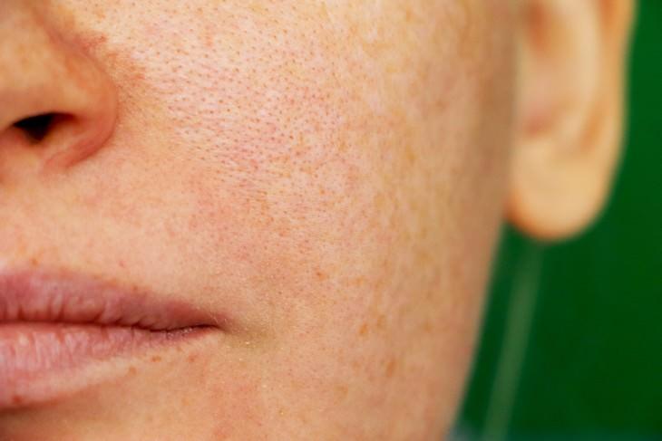 Produtos de beleza inúteis - redutor de poros