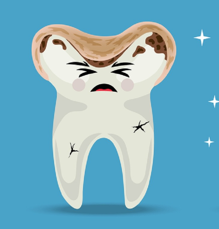 Risks of Over Brushing Your Teeth,  dental abrasion