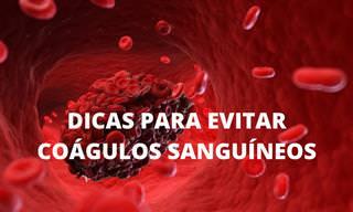 Coágulos de sangue podem ser facilmente evitados