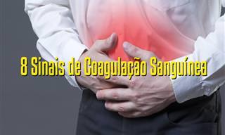 Alertas Que o Nosso Corpo Manda em Caso de Coágulo Sanguíneo