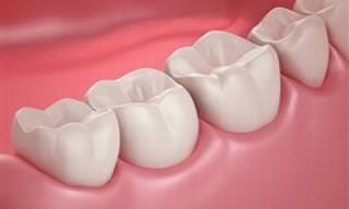 Receitas Naturais Para Acabar Com a Placa dos Dentes!
