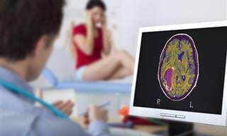 Conhecendo os Sintomas Mais Comuns de um Tumor Cerebral