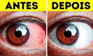 Aprenda a relaxar seus olhos com 10 exercícios fáceis