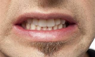 Sinais Que Você Pode Estar Rangendo os Dentes