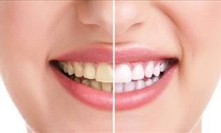 11 Hábitos Prejudiciais aos Dentes