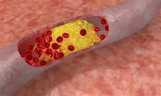 Qual A Ligação Entre A Apneia Do Sono E O Colesterol?