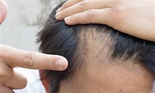 Um Guia Completo Sobre a Alopecia Areata