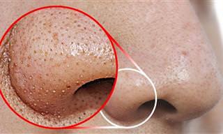 Aprenda a remover cravos faciais em casa!
