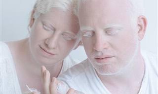 A Beleza Albina Registrada em 20 Fotos Espetaculares