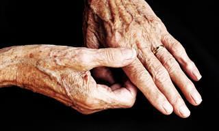 Como funciona a artrose nos dedos das mãos