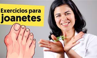 Joanetes: Exercícios para tratar e evitar esse problema