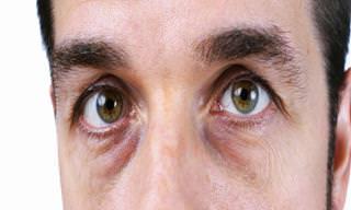 Como Acabar Com Olhos Vermelhos e Inchados Naturalmente