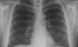Causas de Câncer de Pulmão, Além de Fumar