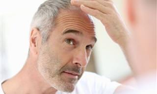 10 Remédios Caseiros Contra Queda de Cabelo