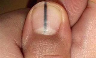 Veja o Que Significa Esta Marca na Unha