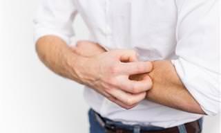 Receita de Creme Caseiro Natural Para Tratar Eczema