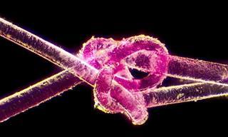 Fotos de Microscópio Que Vão Te Impressionar