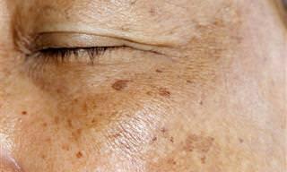 O que é melasma? Veja as causas, sintomas e o tratamento