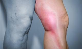 8 Razões Comuns Para Inchaço No Corpo